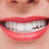白い歯で思いっきり笑おう!自宅でもできるホワイトニングで、自信が持てる明るい顔に♪